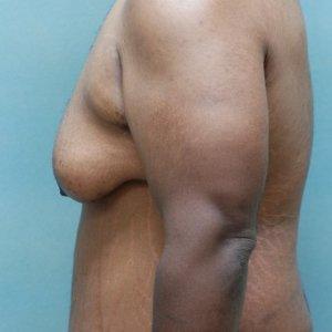 manhattan gynecomastia surgery before 2